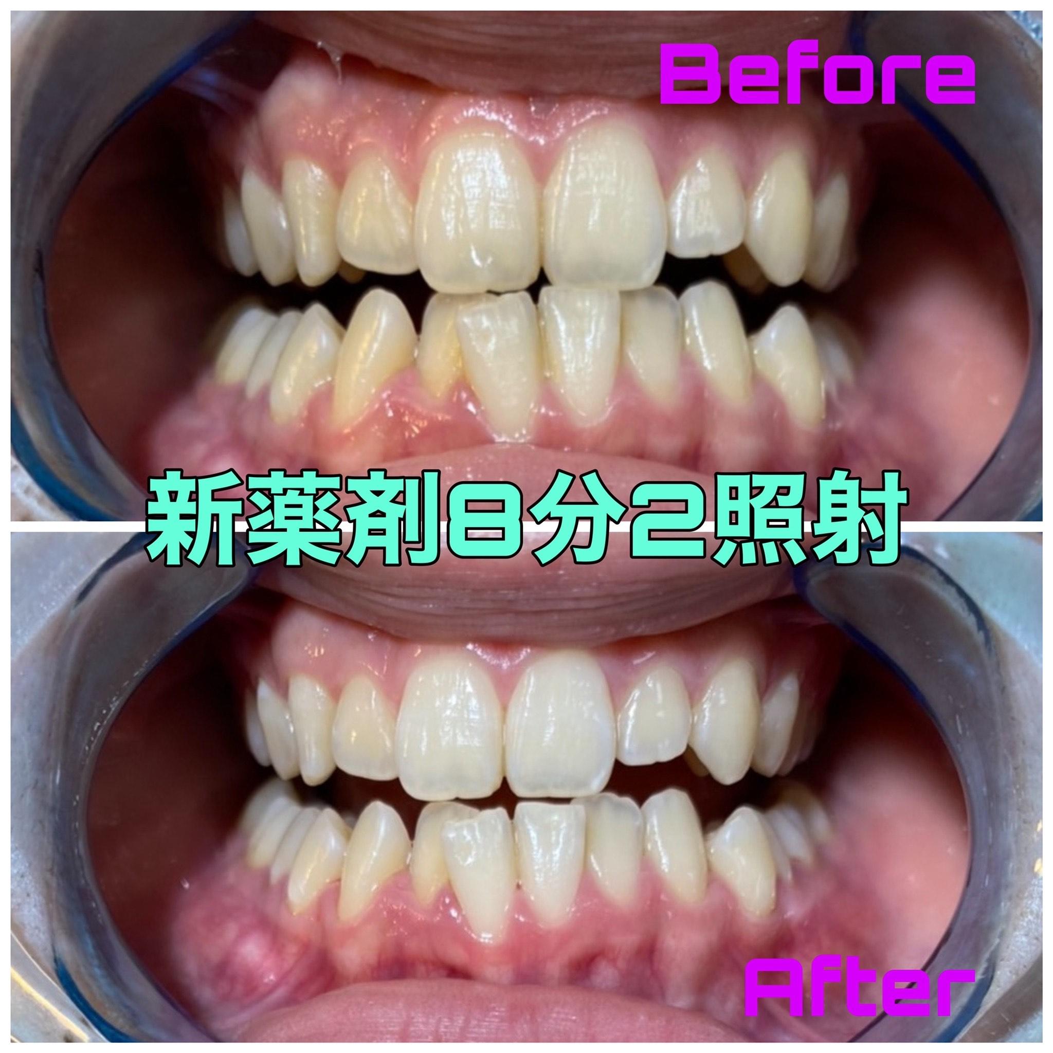 大人気の新薬剤! 町田ホワイトニング 歯科医院提携サロン