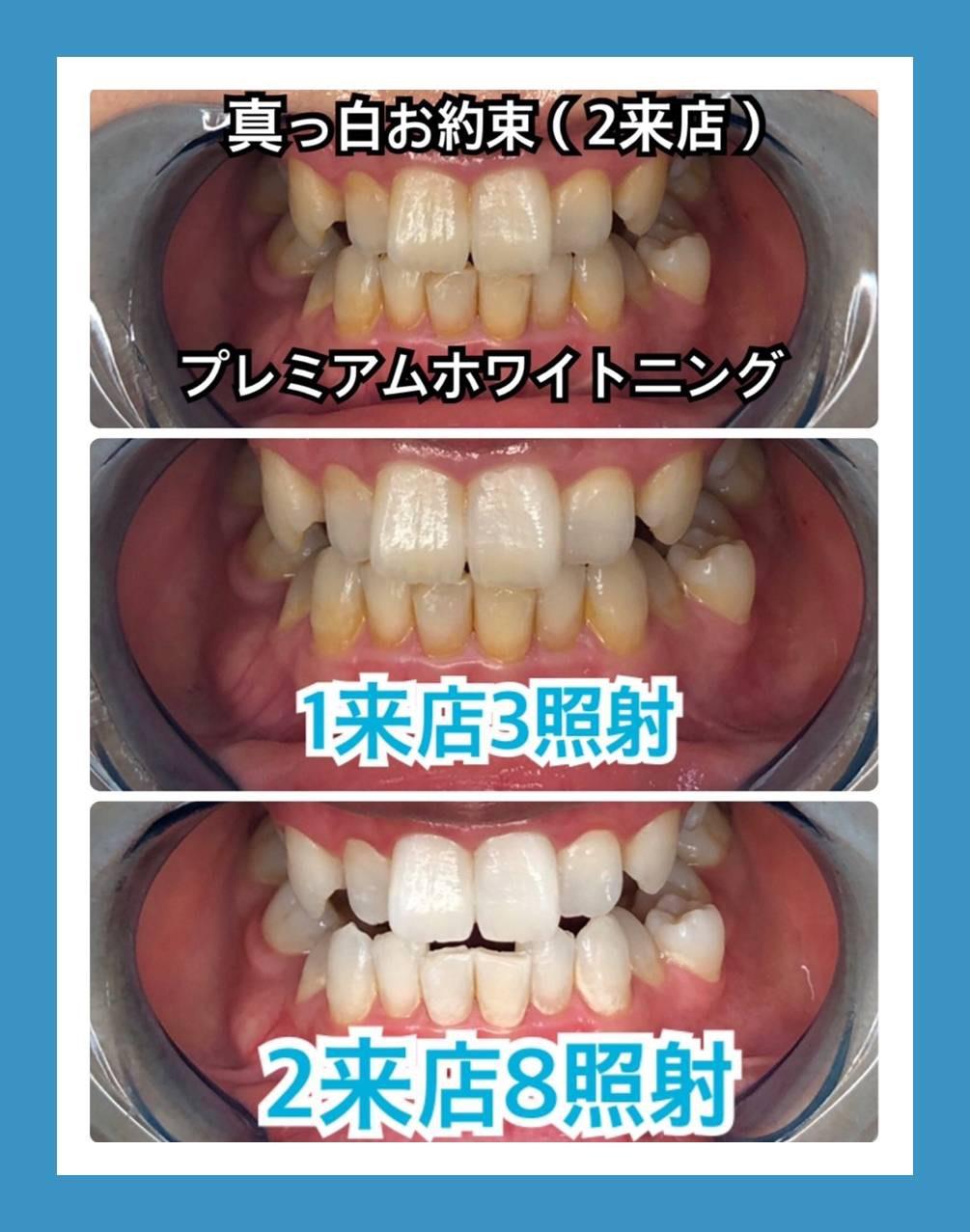 歯科医院、歯科メーカーダブル提携の新薬剤登場